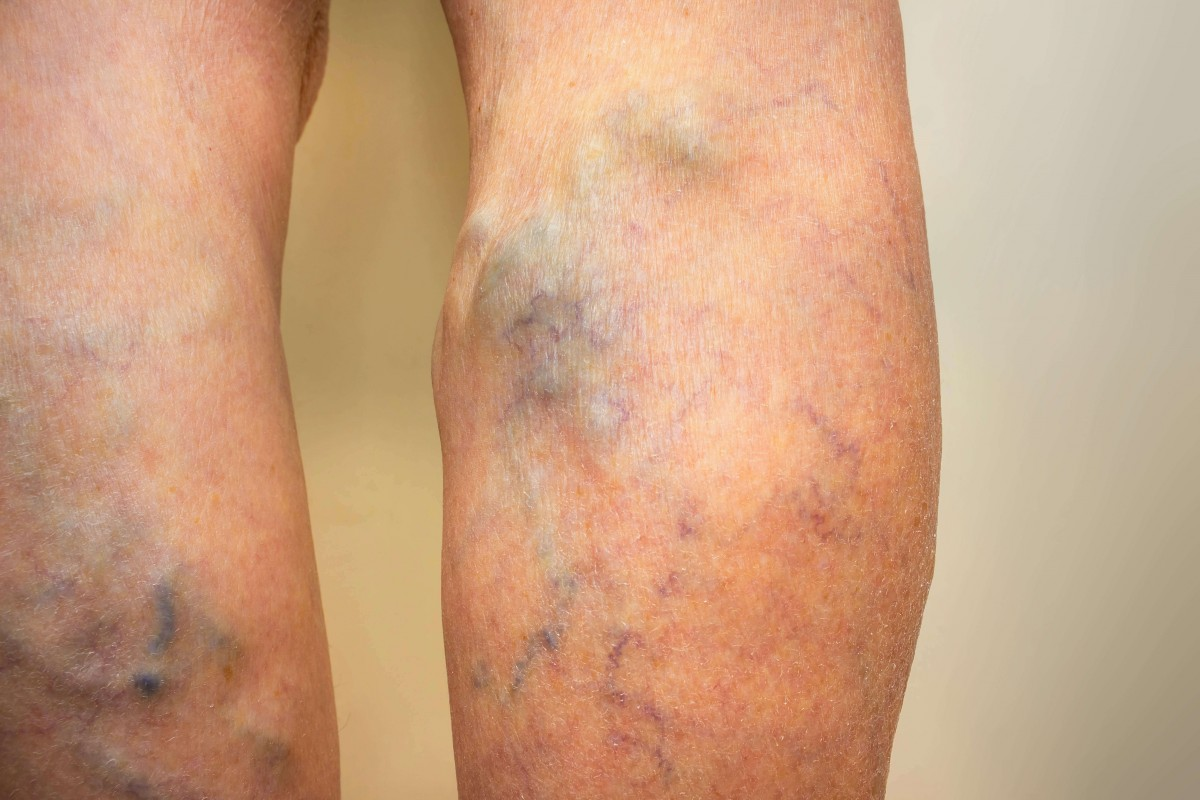 Varicose Vein Treatment Therapy | Varicose Veins R...