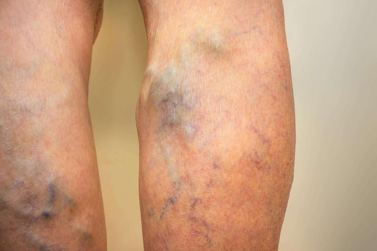 Varicose Vein Treatment Therapy | Varicose Veins R...