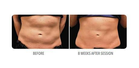 CoolSculpting Specialist - Chestnut Hill, MA: Evol...